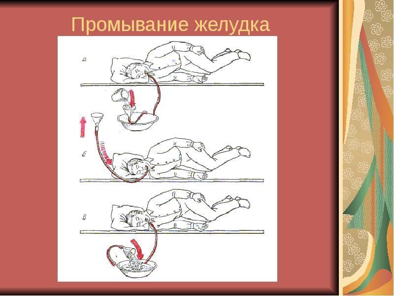 Как сделать промывание кишечника