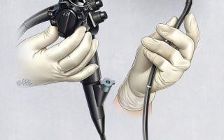 Специфика подготовки к гастроскопии желудка