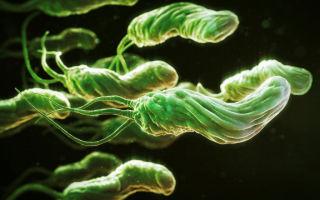 Бактерия хеликобактер пилори: симптомы, диагностика и лечение