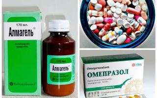 Современные методы лечения и препараты при язве желудка