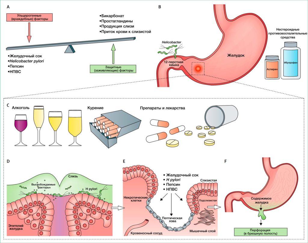 Язва желудка — причины, первые симптомы заболевания, лечение, диета и профилактика