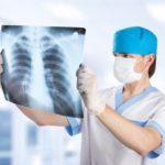 Рентгенологическое исследование - диагностика гастрита